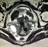 Fallopian παθολογία νεοπλάσματος σωλήνων hematosalpinx στοκ εικόνες