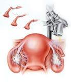 Fallopian στειρότητα σωλήνων Στοκ Εικόνα