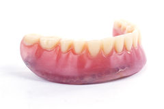 Falsche Zähne prothetisch Lizenzfreies Stockfoto