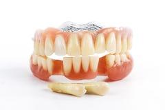 Falsche Zähne prothetisch Stockbild
