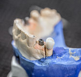 False teeth. On gypsum jaw Stock Images