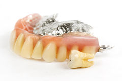 False teeth prosthetic Stock Image