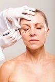 Chirurgia plastica senior Immagine Stock