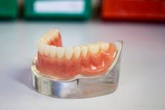 Falska tänder på en metallisk ställning royaltyfri foto