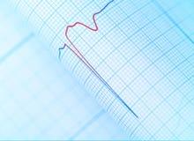 Faratecken på patientens ECG Arkivfoton