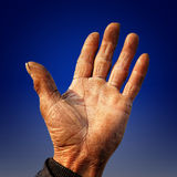 Farmer's rough hand. Old farmer's rough hand with wound Royalty Free Stock Images