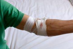 Fasciature e garza sul suo braccio dopo avere dato sangue Donazione di anima Fotografia Stock Libera da Diritti