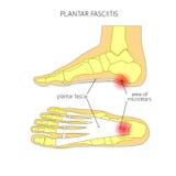 Fasciitis plantaire illustration de vecteur