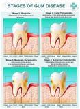 Fase della malattia di gomma illustrazione vettoriale