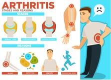 Fases da artrite e razões do vetor do cartaz da doença ilustração do vetor