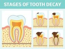 Fases da deterioração de dente Imagem de Stock Royalty Free
