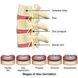 Fases da espinha do herniation do disco e da ilustra??o m?dica do vetor da anatomia 3d do disco ilustração royalty free