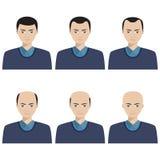 Fases da queda de cabelo e tipos de calvície Imagem de Stock Royalty Free