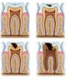 Fases de cáries do dente Imagens de Stock