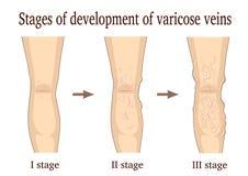 Fases do desenvolvimento das veias varicosas ilustração royalty free