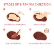 Fases do nascimento do bebê através da seção cesarean ilustração do vetor