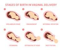 Fases do nascimento do bebê na entrega vaginal ilustração royalty free