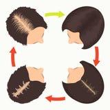 Fases fêmeas da queda de cabelo do teste padrão Fotografia de Stock Royalty Free