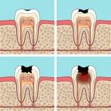 Fasi della carie dentale Immagini Stock