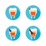Fasi della malattia del dente Fotografia Stock