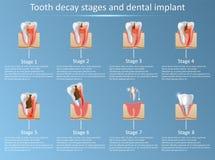 Fasi di carie dentaria ed illustrazione di vettore dell'impianto dentario illustrazione di stock