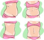 Fat belly before and after treatment.