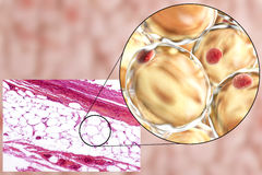 Fat cells, micrograph and 3D illustration. White adipose tissue, light micrograph and 3D illustration, hematoxilin and eosin staining, magnification 100x. Fat Stock Image