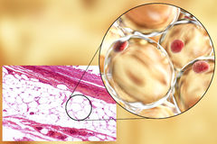 Fat cells, micrograph and 3D illustration. White adipose tissue, light micrograph and 3D illustration, hematoxilin and eosin staining, magnification 100x. Fat Stock Images