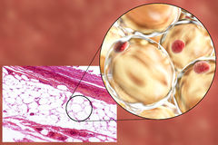 Fat cells, micrograph and 3D illustration Royalty Free Stock Photography