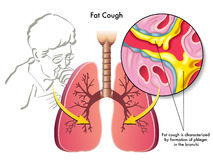 Fat cough. Medical illustration of the symptoms of fat cough Royalty Free Stock Photography