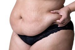 Fat female belly after pregnancy, stretch marks closeup. Isolated on white background stock photo