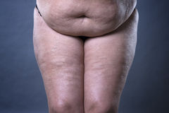 Fat female belly after pregnancy, stretch marks and varicose veins closeup. On gray background stock image