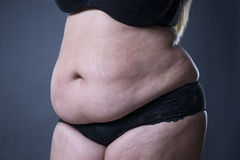 Fat female belly, stretch marks closeup. On gray background royalty free stock image