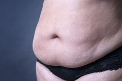 Fat female belly, stretch marks closeup Stock Photos