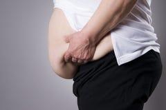 Fat human body. Fatty belly closeup Stock Photo