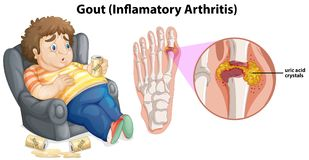 A Fat Man Gout on Foot royalty free illustration