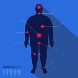 Fat man silhouette, pain point. Vector medical infographics Stock Image