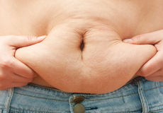 Fat woman body. Measuring stomach fat stock image