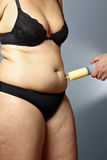 Fat woman liposuction tummy syringe. Body of a middle aged rotund women with cellulite in underwear with a male hand holding a syringe with fat sucked out of her royalty free stock images