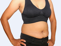 Fat woman. Obese women accumulate fat around the abdomen, upper arms Stock Image