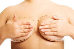 Fat woman before a plastic surgery Stock Photography