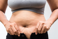 Fat woman. Women with fat belly and stretch marks Stock Photography