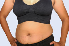 Fat woman. Women with fat belly and stretch marks Stock Image