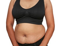 Fat woman. Women with fat belly and stretch marks Stock Images
