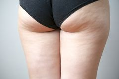 Fatty female hips Royalty Free Stock Photography