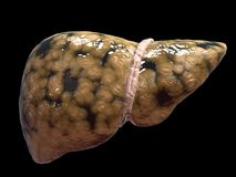 Fatty liver Royalty Free Stock Image
