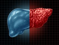 Free Fatty Liver Disease Royalty Free Stock Photography - 125301707