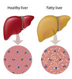 Fatty liver disease. Liver disease with fat accumulated in liver cells Royalty Free Stock Photos