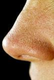 Fatty Nose Pores. Women's nose showing fatty pores and blackheads Stock Images