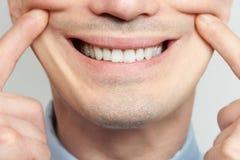 Fazendo o sorriso falsificado imagens de stock royalty free